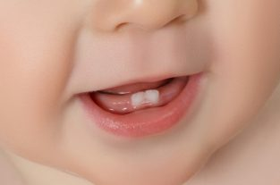 A two side-to-side little milk teeth in a baby's cute mouth